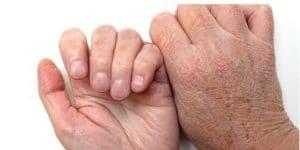 محافظت از پوست سالمندان