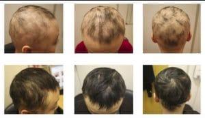 ریزش مو سکه ای در کودکان