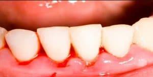 تاثیر دیابت بر دندان و لثه