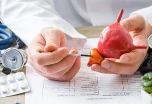 بزرگ شدن پروستات و دارو درمانی