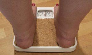 فواید جراحی کاهش وزن