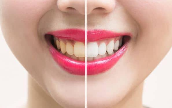 علل دندان های زرد