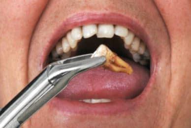 بهبود جراحی دندان